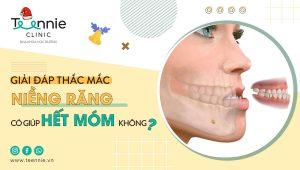 Niềng răng móm và những điều cần lưu ý